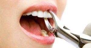 Удаление зуба на дому в СПб
